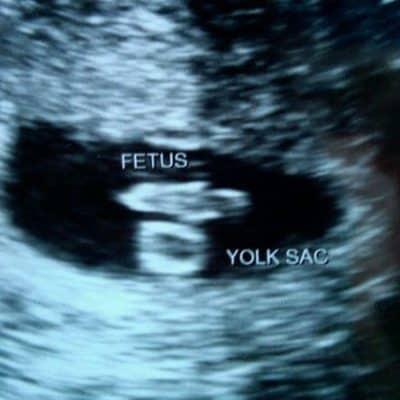 Pregnancy Week 6 – (Not So) Wordless Wednesday